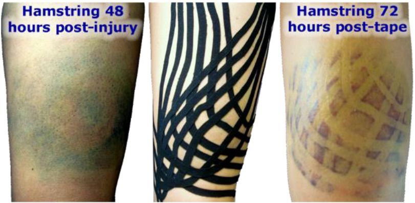 Effect of Kinesiology Fan Taping on Swelling and Bruising - Blog Post