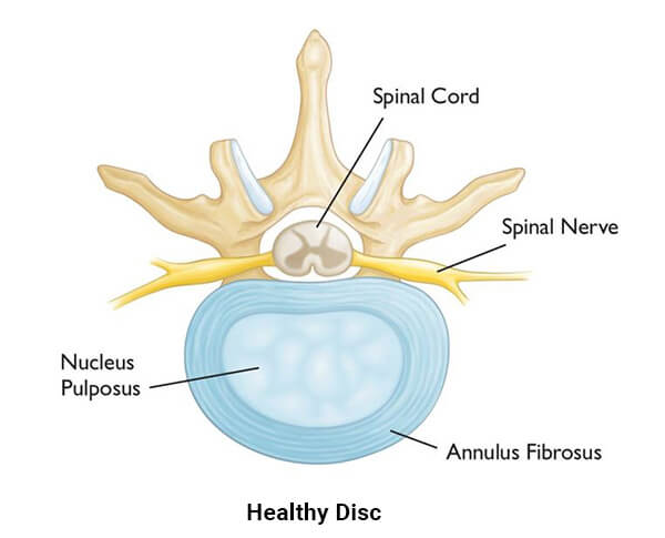 Perth Wellness Centre - 요추 추간판 탈출증 - Lumbar Disc Herniation